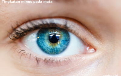 Mengenal Tingkatan Minus Mata dan Dampaknya bagi Penglihatan